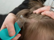 How to Check for Lice Guide