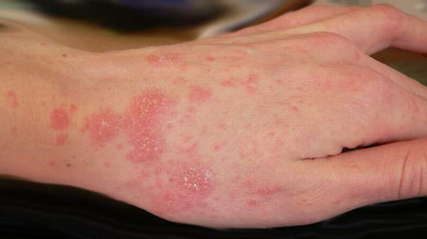 How to Get Rid of Scabies