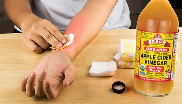 Apple Cider Vinegar for Hives
