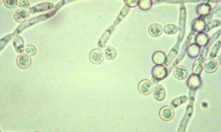 Candida: Causes, Symptoms, Diagnosis & Treatments