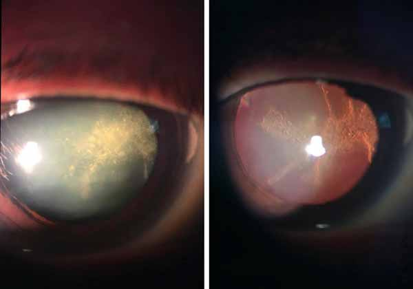 cataract before and after