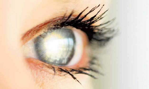 Cataract: Symptoms & Natural Treatments