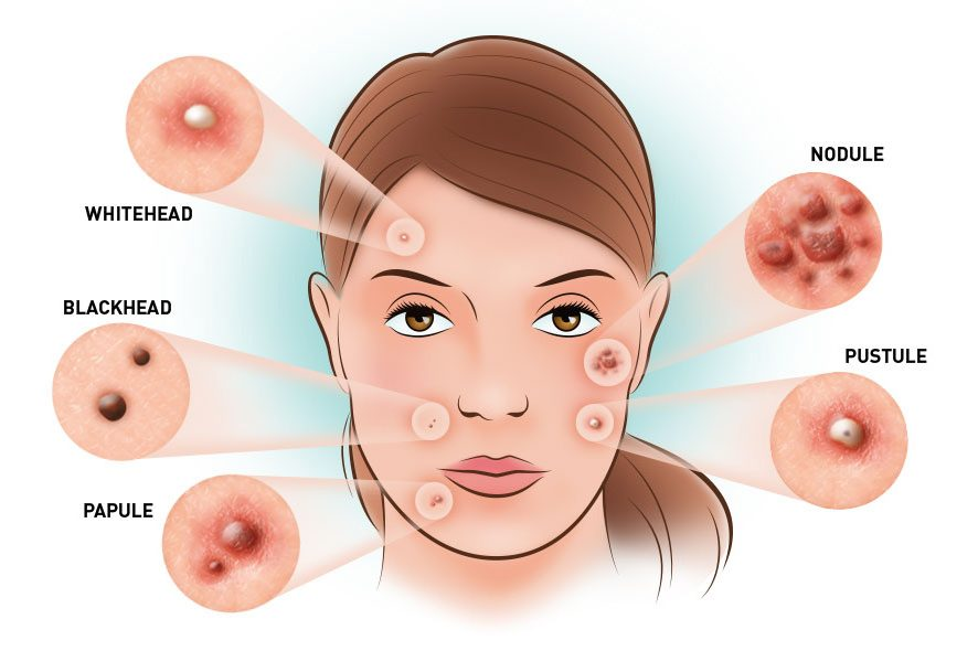 header-types-of-acne-886x590
