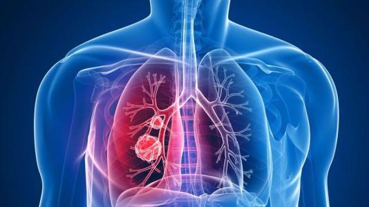 肺部發現結節是肺癌嗎?   香港保健協會