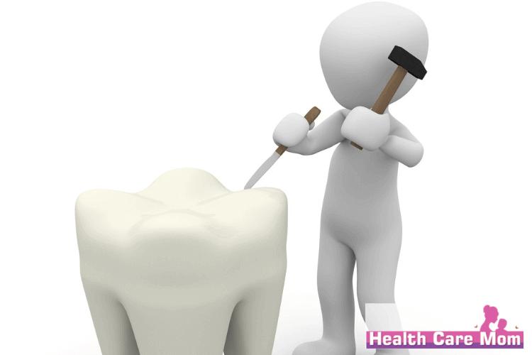 false teeth repair
