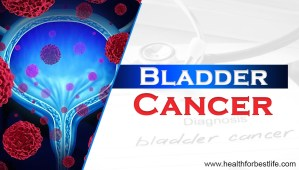 What are the symptoms of bladder cancer