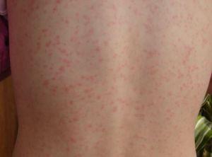 Scarlet fever rash