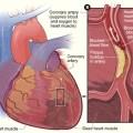 Heart attack NIH