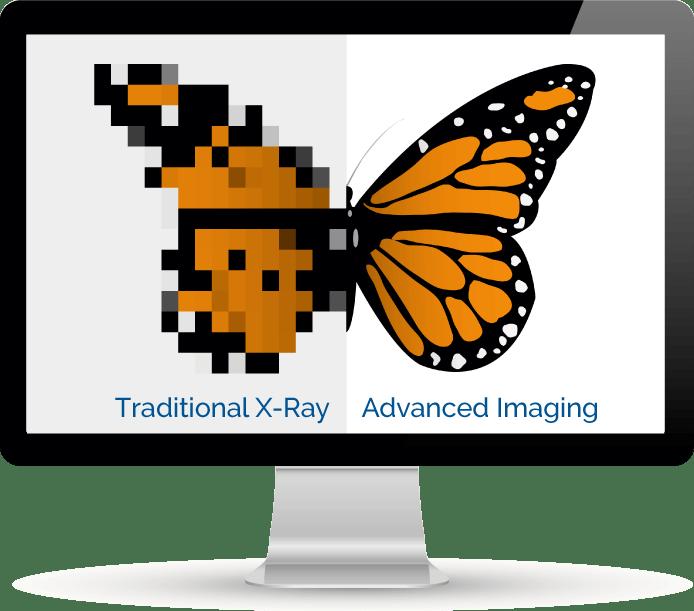 Upper Cervical Advanced Imaging