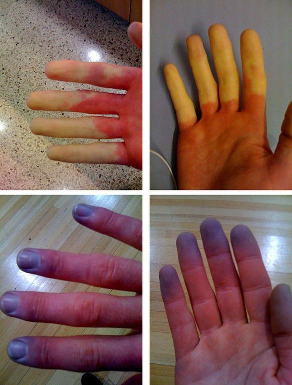 Turn Blue Finger String