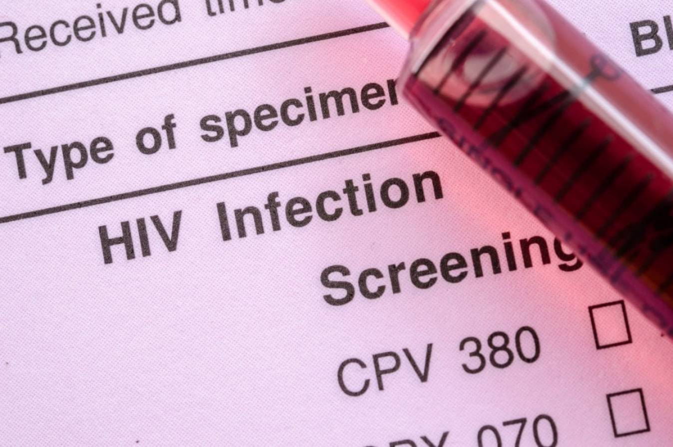 Health Ministry unveils ambitious targets to bring HIV cases down