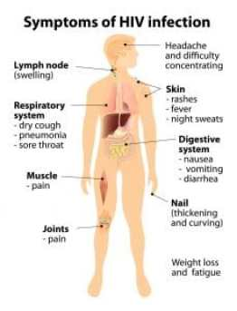HIV symptoms Copyright: <a href='https://www.123rf.com/profile_designua'>designua / 123RF Stock Photo</a>