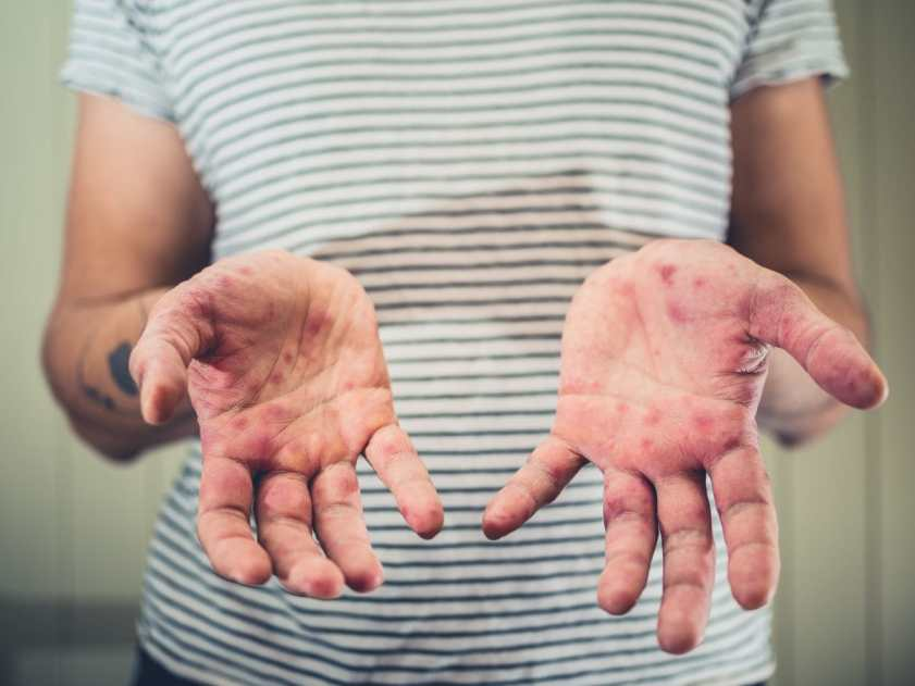 Chickenpox. A young man is showing his hands with spots and rash from hand foot and mouth disease