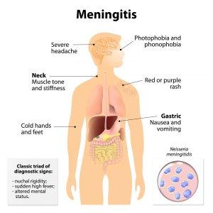 Meningitis Image ID: 41854996 (L). Image credit: designua / 123rf