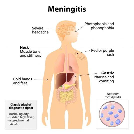 Meningitis Image ID: 41854996 (L)