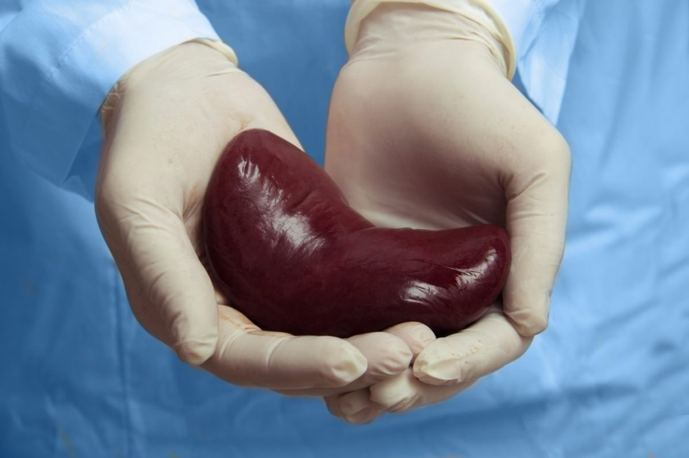 Organ Donation Day: Life and death on the transplant list