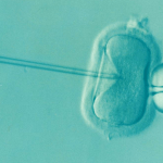 Cap.: A demonstration of IVF, a form of assisted reproductive technology. Concept of ART.