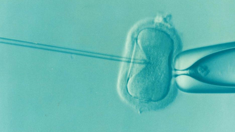 IVF fertility concept.