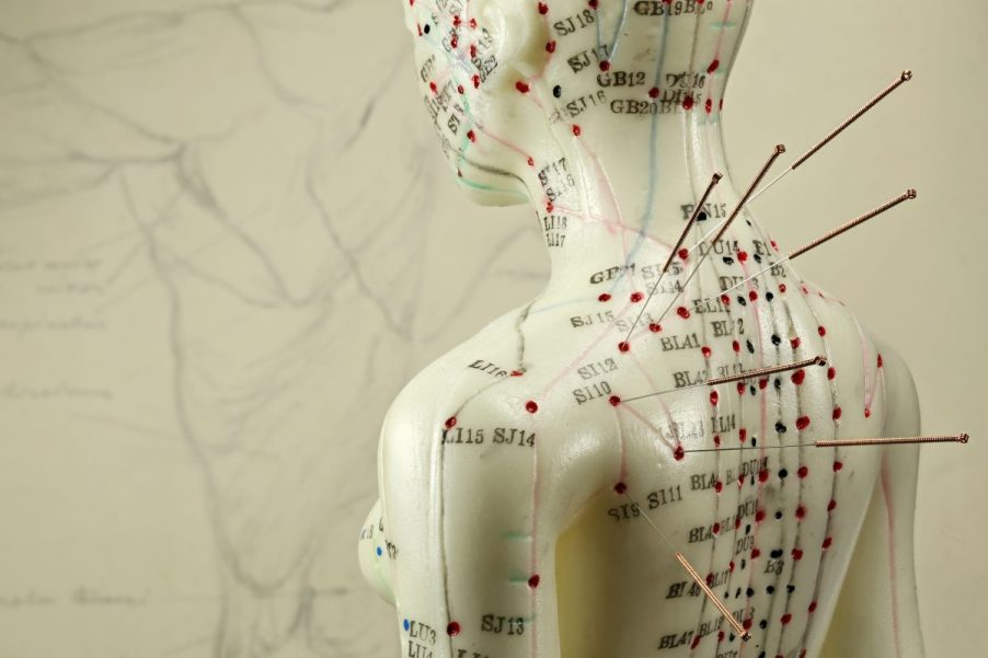 89904048 - female acupuncture model with needles in the shoulder, Example of traditional Chinese medicine