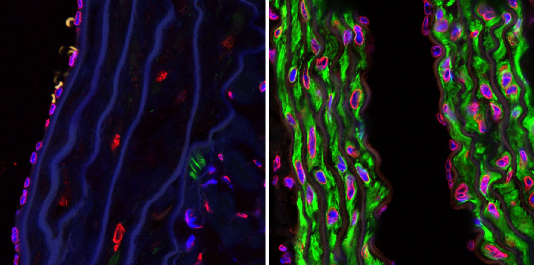 English: Confocal microscopy photographs of the descending aortas of two 15-month-old progeria mice, one untreated (left picture) and the other treated with the farnsyltransferase inhibitor drug tipifarnib (right picture). The microphotographs show prevention of the vascular smooth muscle cell loss that is otherwise rampant by this age. Staining was smooth muscle alpha-actin (green), lamins A/C (red) and DAPI (blue). (Original magnification, x 40)