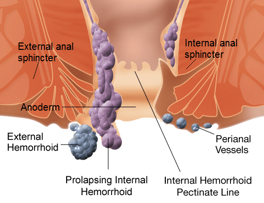 Internal & External Hemorrhoids