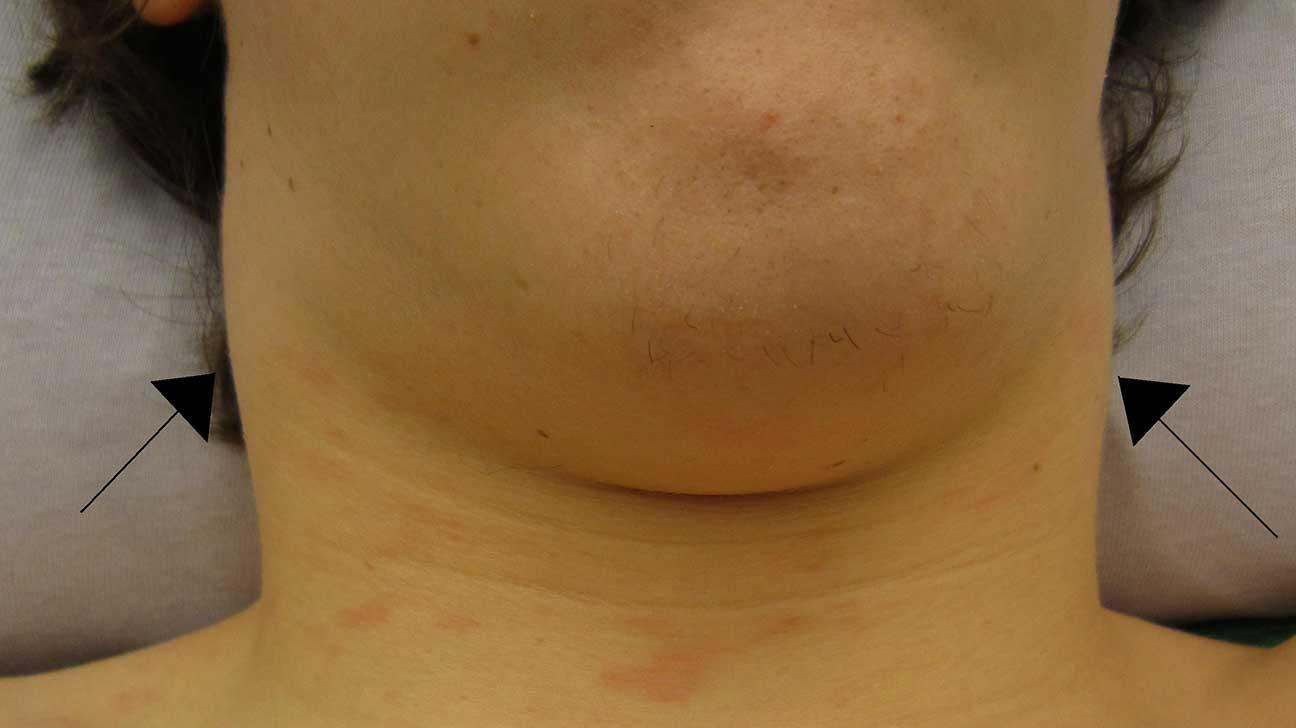 Swollen Lymph Node Under Jaw Line
