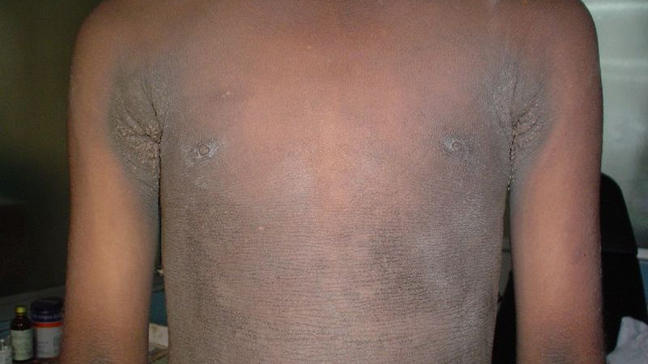 Dark Spots Neck Diabetes