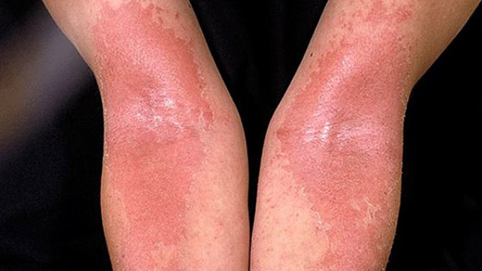 Image result for Eczema