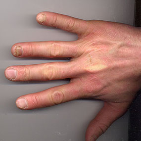 Psoriatic Arthritis Is A Form Of Ociated With Psoriasis Chronic Skin And Nail Disease