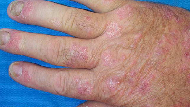 Psoriatic Arthritis Monly Causes Pitting And Separation Of Nails