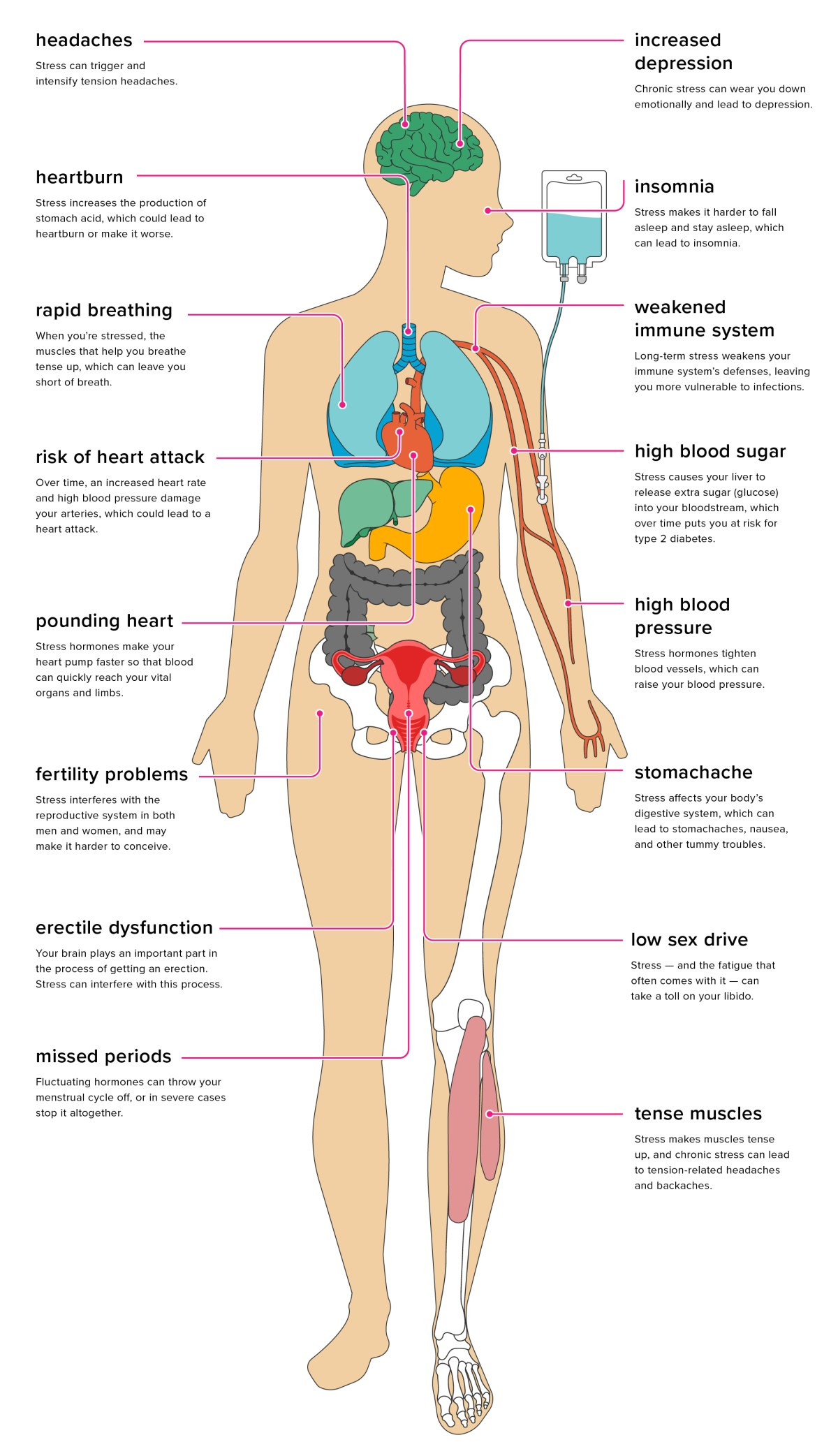 Stress Effects Pinterest 2 - STROKE: 8 QUICK FACTS WITH PROACTIVE PREVENTION TIPS