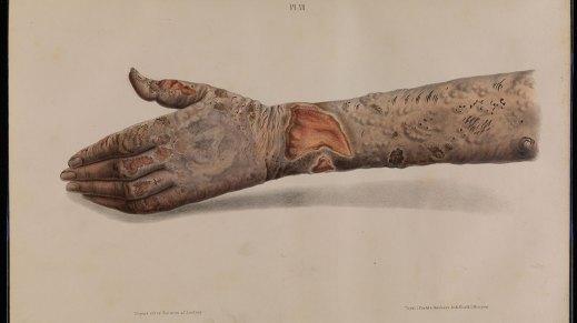 Image result for Leprosy