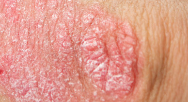 Genital Psoriasis: Symptoms, Treatment, and More