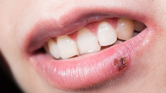 Image result for SORES