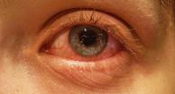 La conjuntivitis alérgica