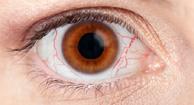 Resequedad en los ojos