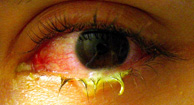 Ardor en el ojo acompañada de prurito y secreción