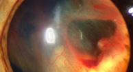 El desprendimiento de retina