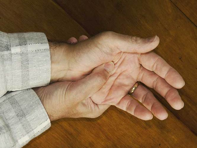 Psoriatic Arthritis Mutilans Symptoms Treatment And More Is A Rare Type Of In Which Bone Tissue