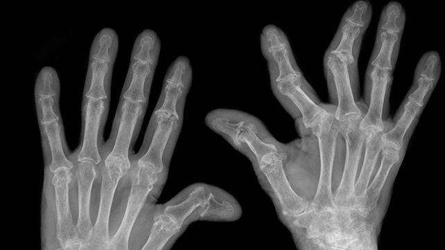 Pictures of rheumatoid arthritis
