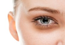 treatment for dark circles under eyes