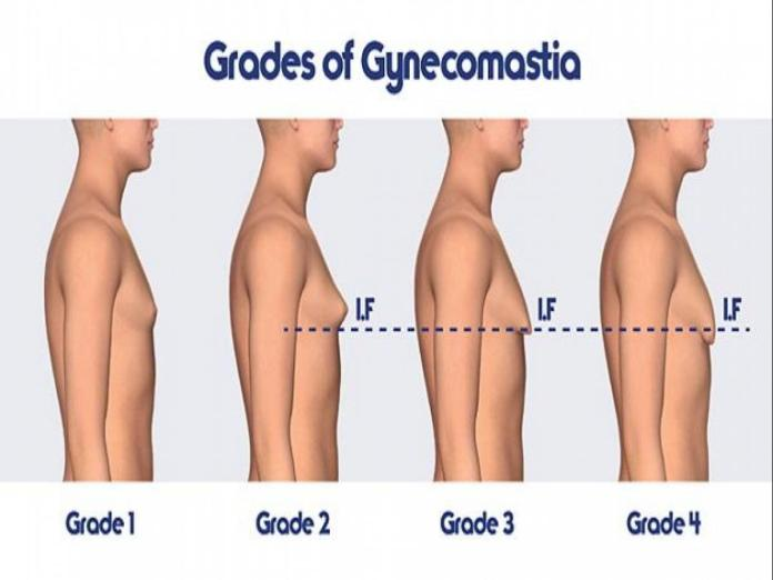 Treatment for Gynecomastia