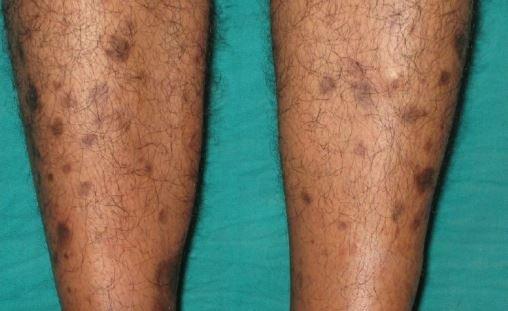Brown spots on legs