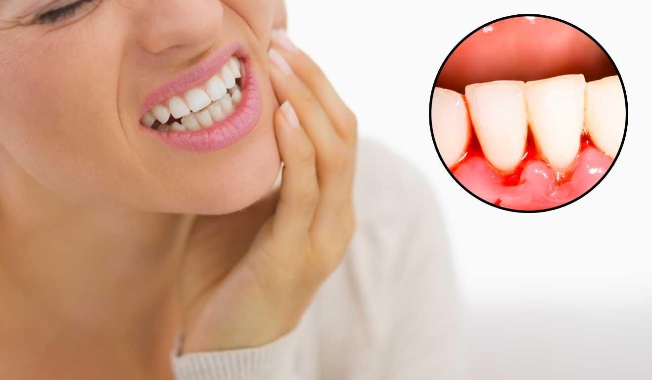 Image result for bleeding gums