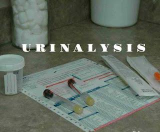 A laboratory tests of urine