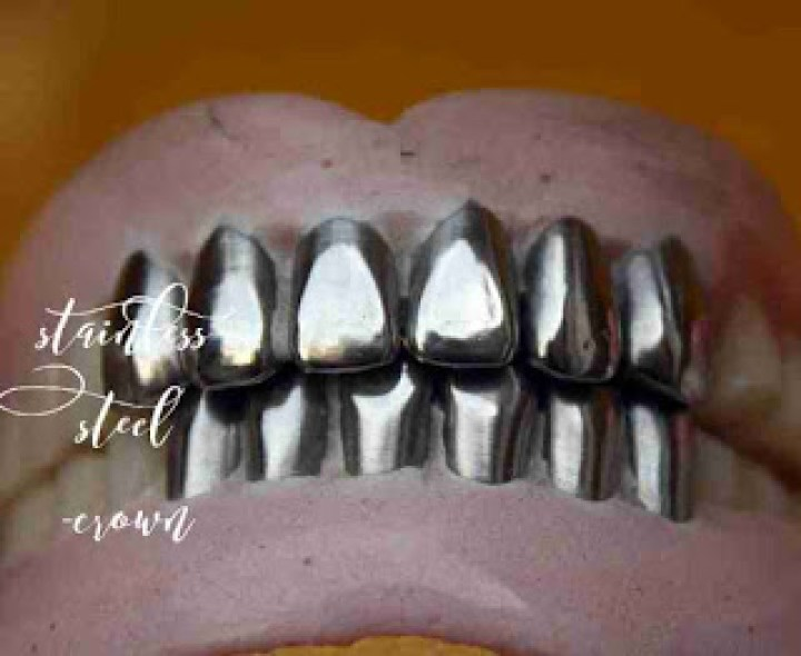 Badly Broken down Teeth: Gold inlays and crowns