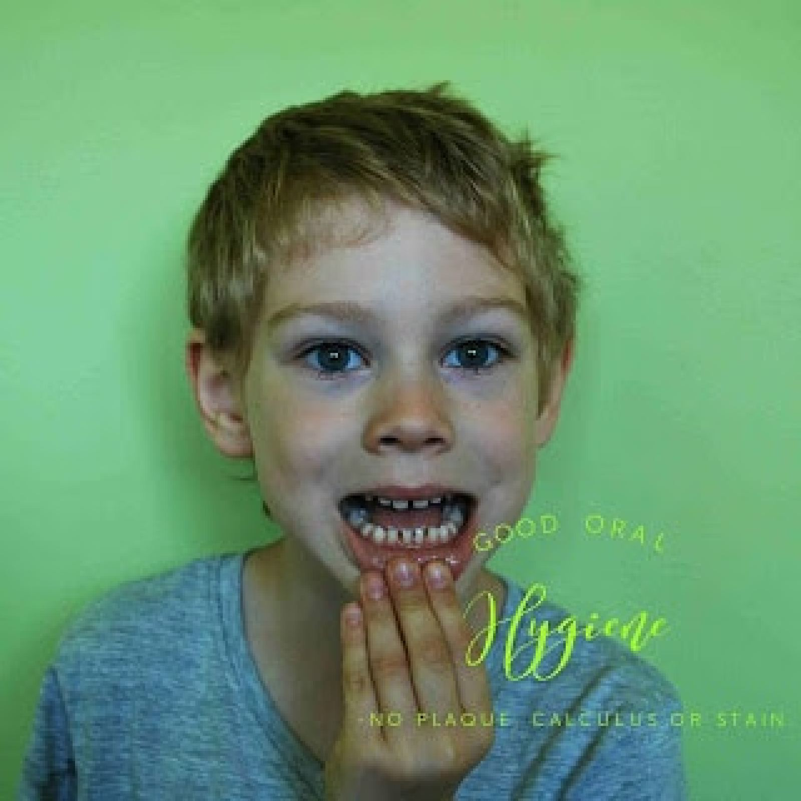 Home remedies: How to make your teeth healthy, white, and free from plaque and calculus