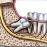wisdom or impacted tooth