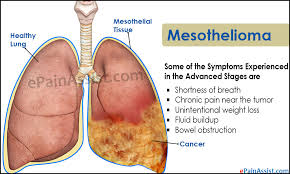 Mesothelioma: Causes, Diagnosis, Symptoms, Risk, Prevention and Treatments