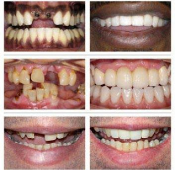 Replace your missing tooth and make your smile long lasting with dental implants
